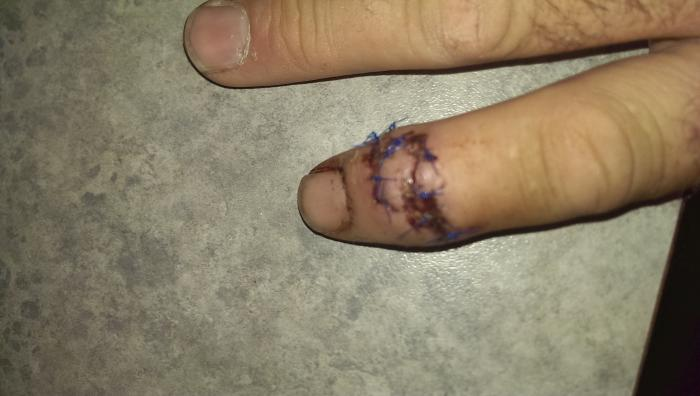 Stitched finger.jpg